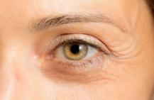 Как избавиться от морщин под глазами: все способы