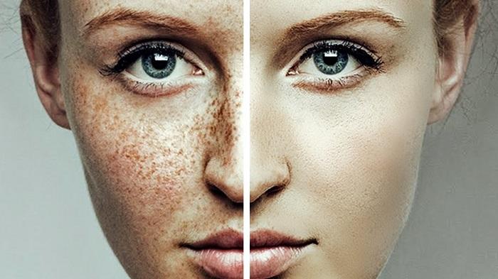 Отбеливание кожи лица от пигментных пятен