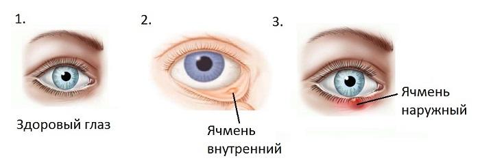 Внутренний и наружный ячмень на глазу