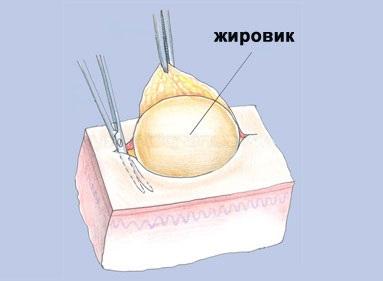 Удаление липомы (жировика) хирургическим путем