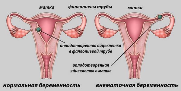 внематочная беременность на ранних сроках